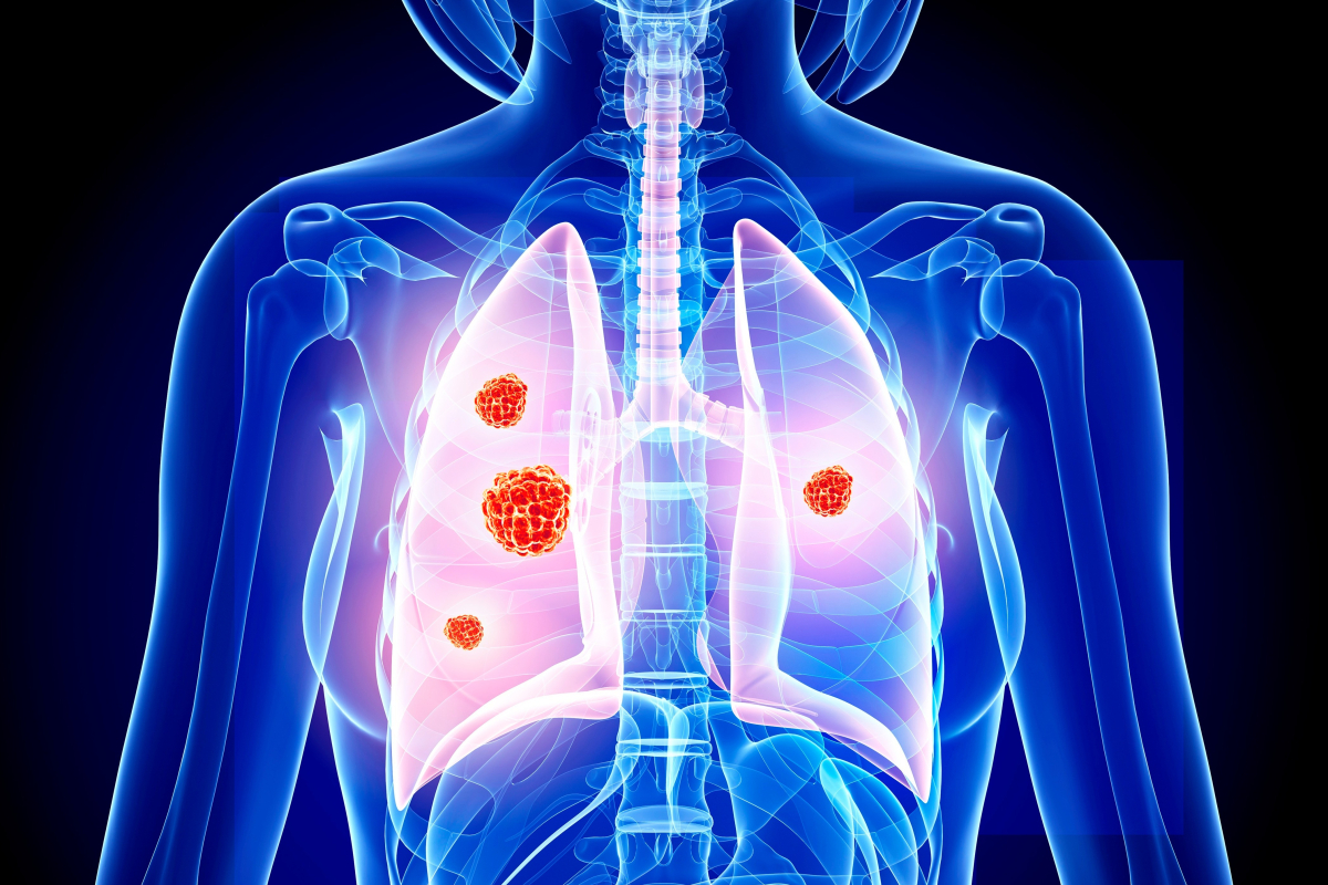 Lung cancer 'is forgotten disease of Covid-19 pandemic with 14,000 fewer patients referred for urgent checks'